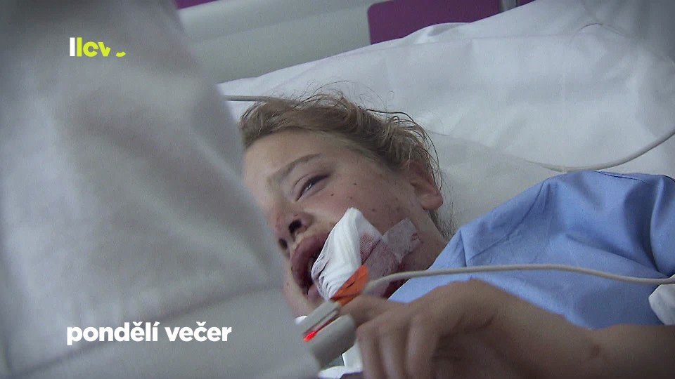 Nemocnice Motol (1) - upoutávka